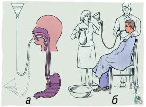 Промывание желудка как способ отрезвления