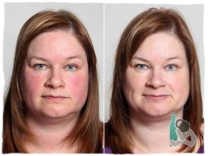 Влияние алкоголя на цвет лица