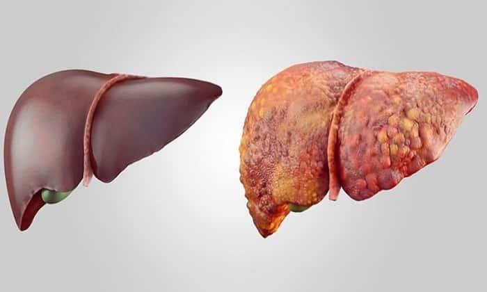 Анальгин в сочетании с алкоголем губительно воздействует на многие органы, в т.ч. и на печень