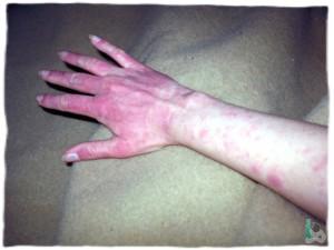 Аллергия при приеме Зорекса
