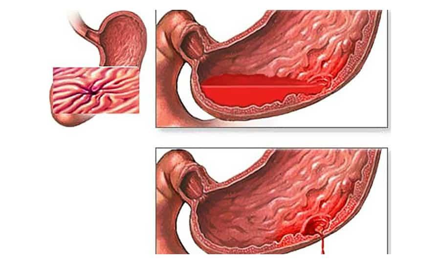 Чаще всего кровь в содержимом, выходящем из желудка при рвоте, обуславливается повреждением желудка или пищевода