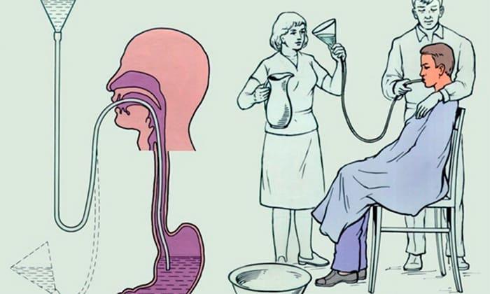 Если человека вырывает желчью, то стоит первым делом стоит обратиться к врачу и промыть желудок