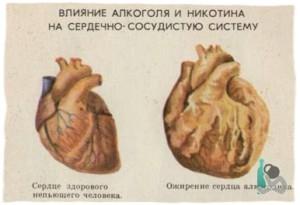 Влияние алкоголя и никотина на сердечно-сосудистую систему