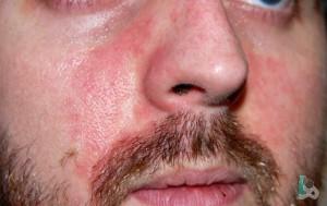 Непереносимость алкоголя - покраснение кожи