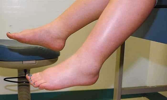 Если ноги отекают из раза в раз – речь может идти об алкогольной кардиомиопатии или хронической артериальной, сердечной гипертензии