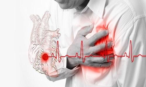 После запоя давление может долго держаться в критическом состоянии, что повышает риск инфаркта миокарда