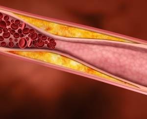 повышается ли холестерин от алкоголя