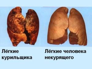 Курение и легкие