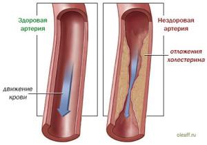 Отложение холестерина