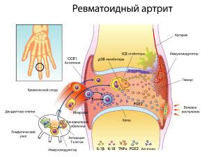 Процессы в суставе при ревматоидном артрите