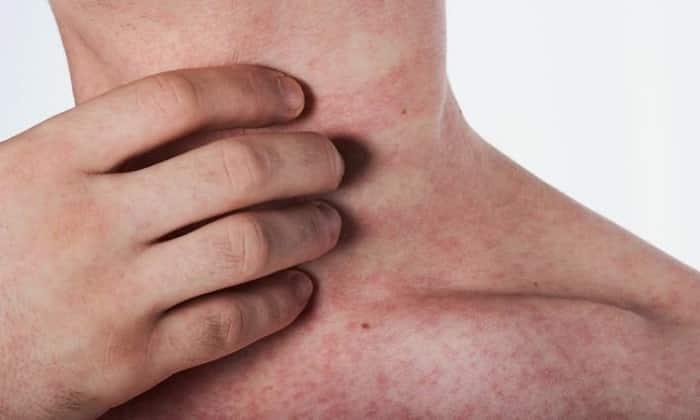 Раздражения эпидермиса так же один из побочных эффектом лекарства