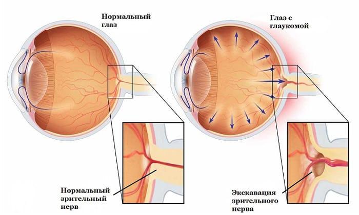 Препарат противопоказан при глаукоме