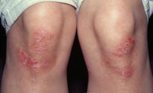 Псориаз на колене