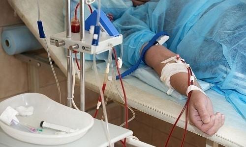 Дополнительно к применению Бинастима рекомендуют использовать методику плазмаферез