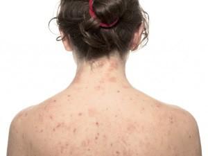 Аллергия - следствие употребления алкоголя при лечении