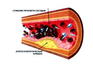 Атеросклероз - следствие употребления алкоголя