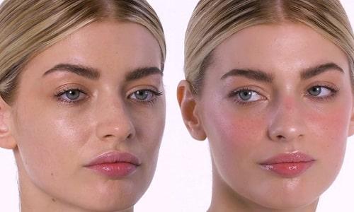 Необходимо помнить: покраснением кожи организм сигнализирует, что необходимо принимать меры для предотвращения более тяжелых последствий