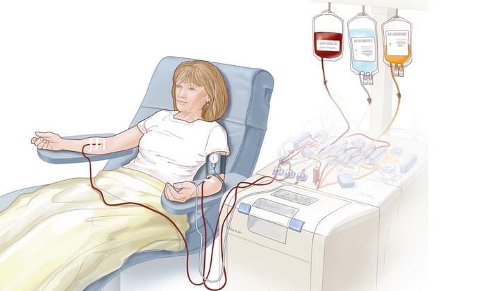 При сильном опьянении с целью скорейшего выведения продуктов распада этилового спирта могут быть показаны процедуры плазмафереза