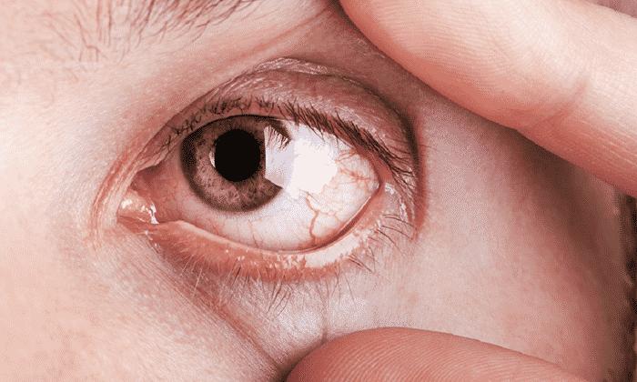 К опасным явлениям относят нарушения работы глазных нервов