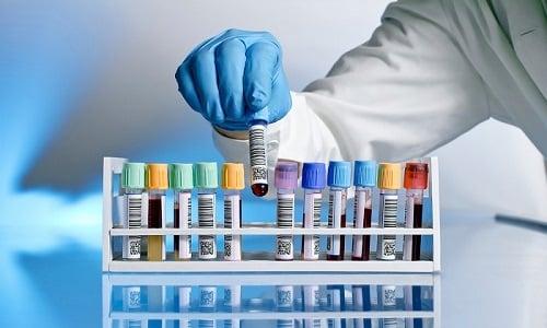 Никотиновая кислота снижает уровень холестерина в крови