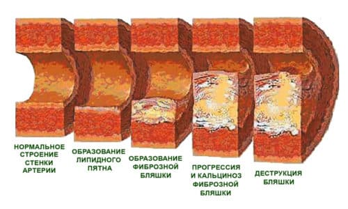 На второй стадии коронарные артерии все больше блокируются атеросклеротическими бляшками