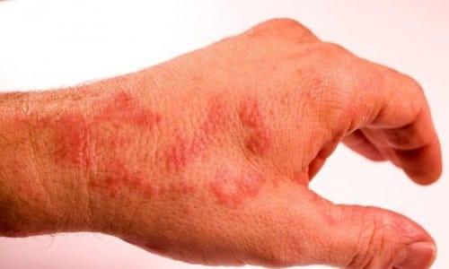 Аллергия при смешении лекарств с вином проявляется в виде местных реакций на кожном покрове