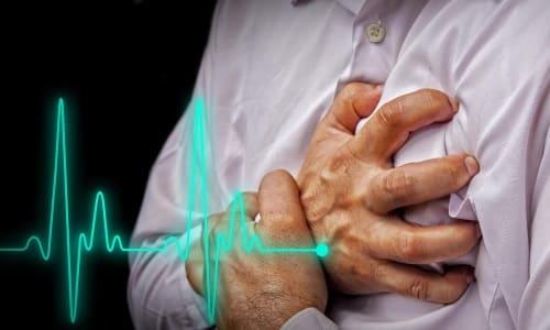 Сердечный Аспирин используется для комплексной терапии заболеваний миокарда