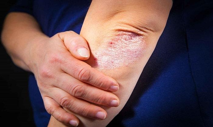 При псориазе лечение Седалитом назначают с осторожностью