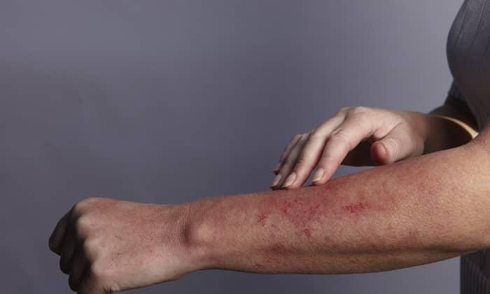 На некоторые компоненты препарата может появляться аллергическая реакция
