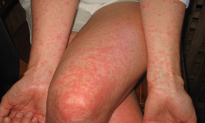 При превышении дозировки возможно проявление аллергических реакций