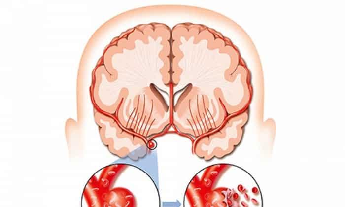Препарат способен защищать сосуды головного мозга