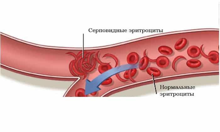 При серповидно-клеточном вазоокклюзивном кризе принято назначать пирацетам