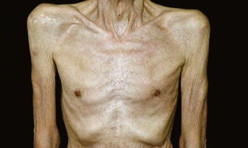 Переизбыток в организме янтарной кислоты приводит к избыточной потери массы тела