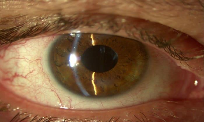 Препарат показан при открытоугольной глаукоме на разной стадии