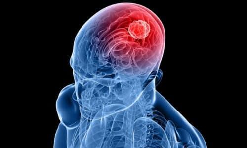 Данный препарат длительное время активно используется в медицине в качестве средства для восстановления правильной работы мозга