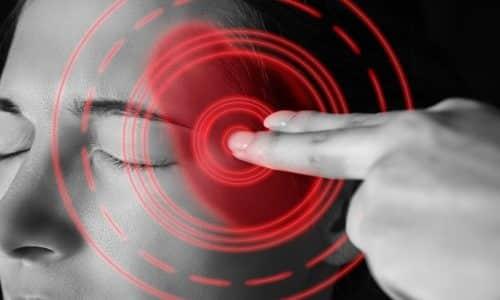 Во время приема препарата возможно появление головных болей