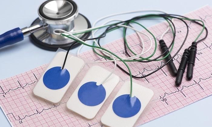 При проведении ЭКГ может наблюдаться расстройство сердечного ритма