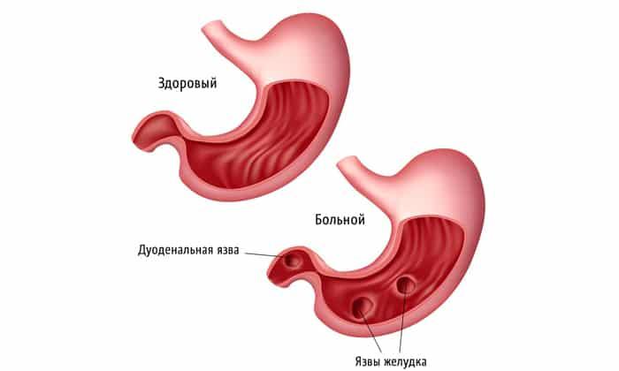 Язва желудка является противопоказанием к применению препарата