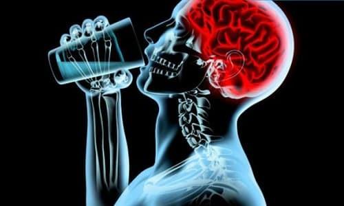Алкогольная (токсическая) энцефалопатия (острая, хроническая ...