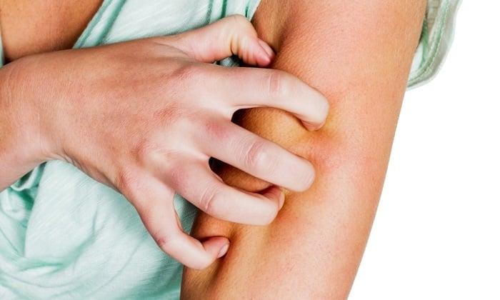 Если у человека аллергия на активные компоненты свечей, следует проконсультироваться с врачом. Когда аллергия возникает внезапно, нужно отказаться от дальнейшего лечения