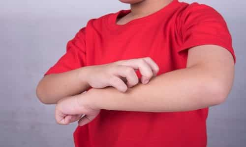 В некоторых случаях сообщается о появлении аллергических реакций на использование лекарства