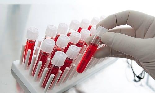 В первый месяц использования лекарства концентрация ионов лития в кровяной плазме должна фиксироваться каждый день