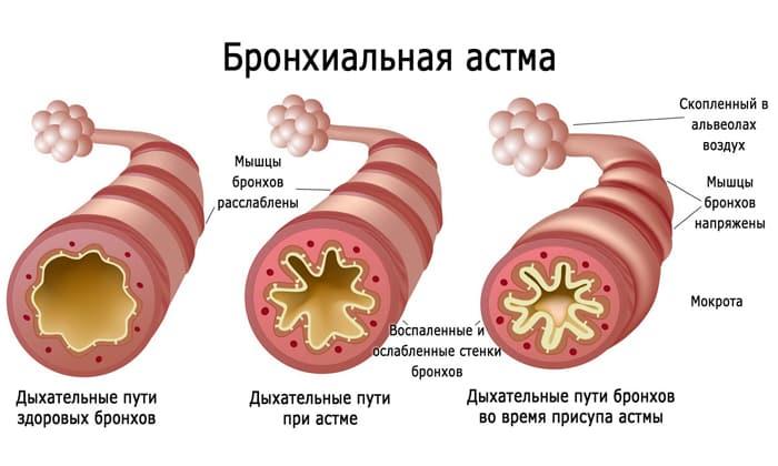 Хронические заболевания органов дыхания являются противопоказанием к применению Аспикора