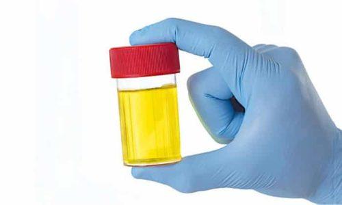 До 90% метаболитов М5 и М6 выводится с мочой