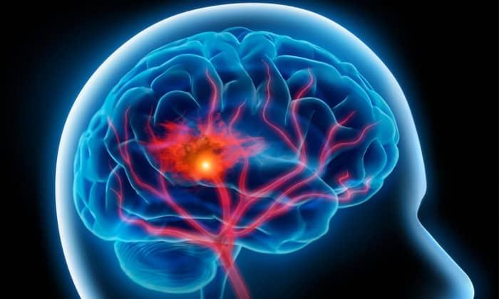 Аспикор назначают если наблюдается недостаточный приток крови в головной мозг вследствие физической и эмоциональной загруженности
