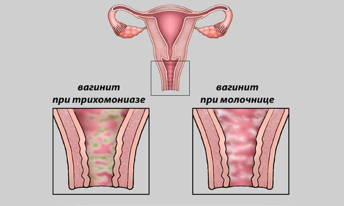 Суппозитории применяют женщины с вагинитом