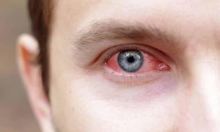 Препарат назначается при кровоизлиянии в сетчатку глаза