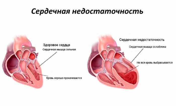 Препарат назначается при хронической сердечной недостаточности различной этиологии