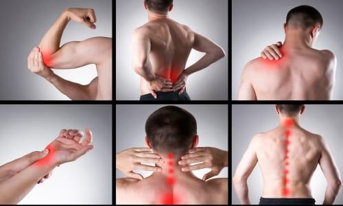 Парацетамол назначают при наличии болевого синдрома различного происхождения легкой и средней интенсивности