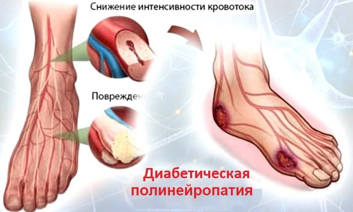 Карбамазепин рекомендован для лечения диабетической полинейропатии